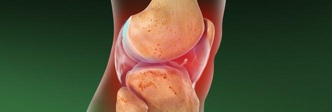 Воспалительные и дистрофические заболевания сустава
