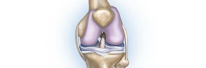 Сильные боли в левом колене thumbnail