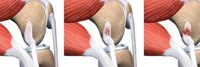 Повреждение связок колена